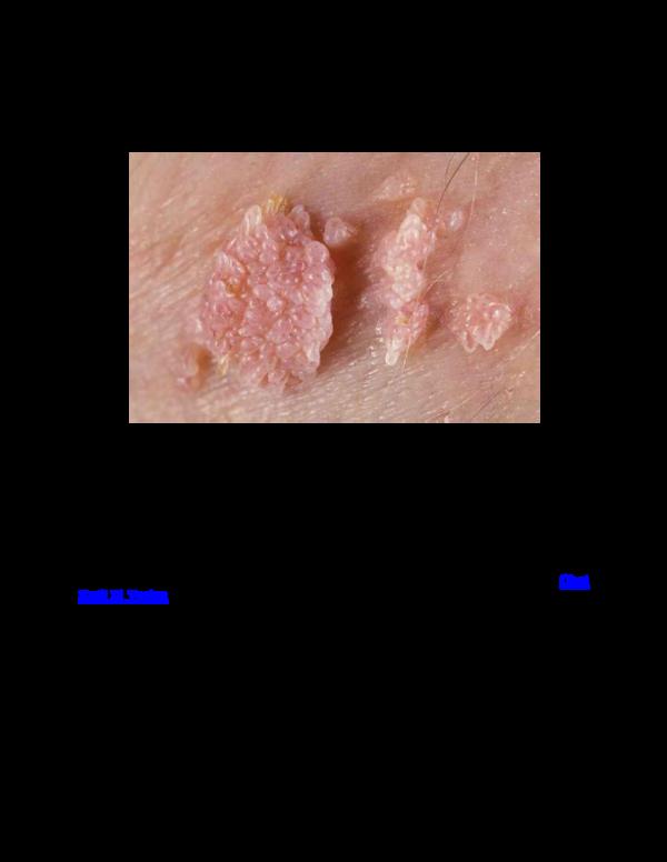 Hpv virus szemolcs - Wurmer enterobius vermicularis