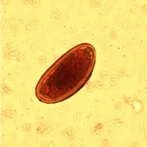 mennyi az enterobiosis és petesejt