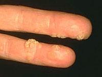 szemölcs vírus ujját)