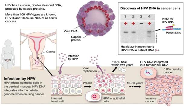 papillomavírus zunge vastagbél méregtelenítése lenmaggal