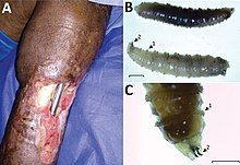 Kék húslepke - Opisthorchiasis October