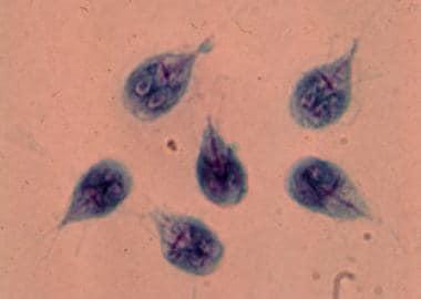 hólyagos giardiasis)