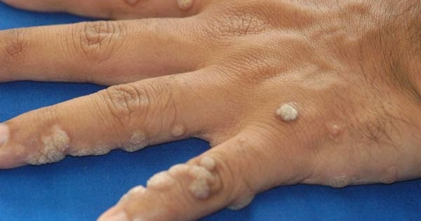Condyloma fertőzés, HPV tévhitek és tények