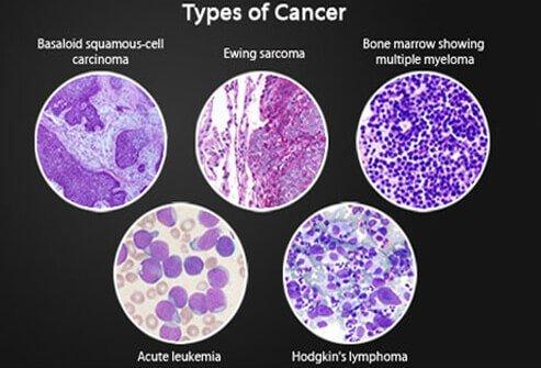 ami a rák lymphoma
