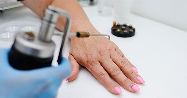 Lézeres és radiokauteres bőrnövedék eltávolítás