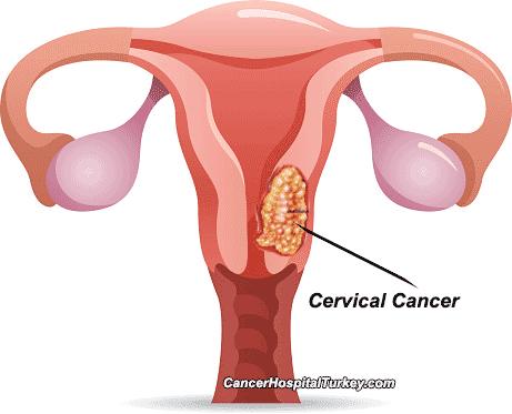 A HPV gyógyítható