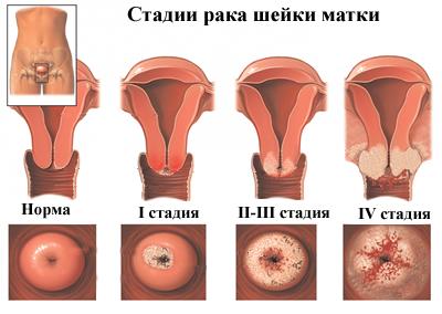 méhnyakrákot vesznek fel)
