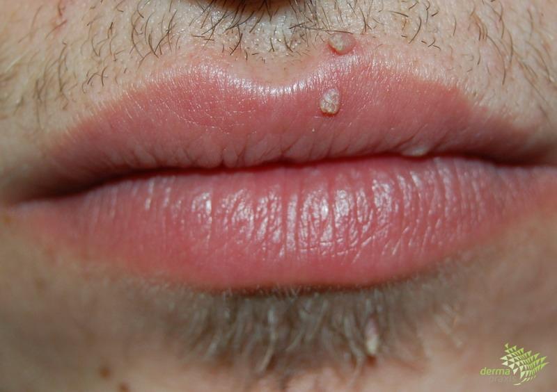 hpv genitális condyloma Papilloma vírus szájtünetei