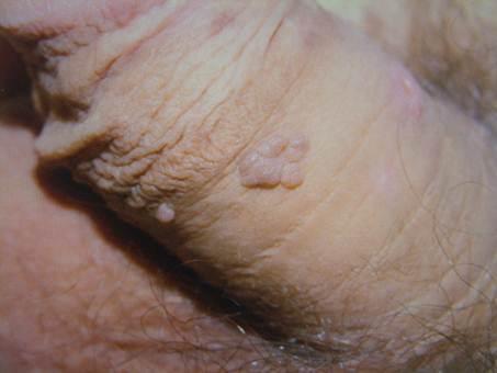 bushke condyloma kezelés szemölcsök a kezelés során
