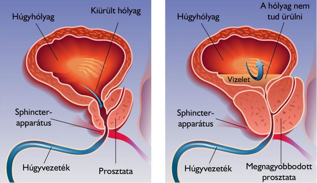 prosztatarák ultrahang