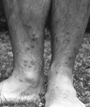 gyomorrák endoszkópia krém papilloma kezelés