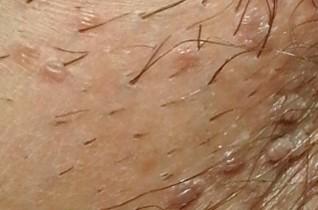 papillomavírus férfiaknál