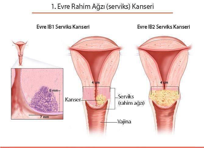 hpv kanseri nedir mik a szemölcsök a nőknél az anyaméhben