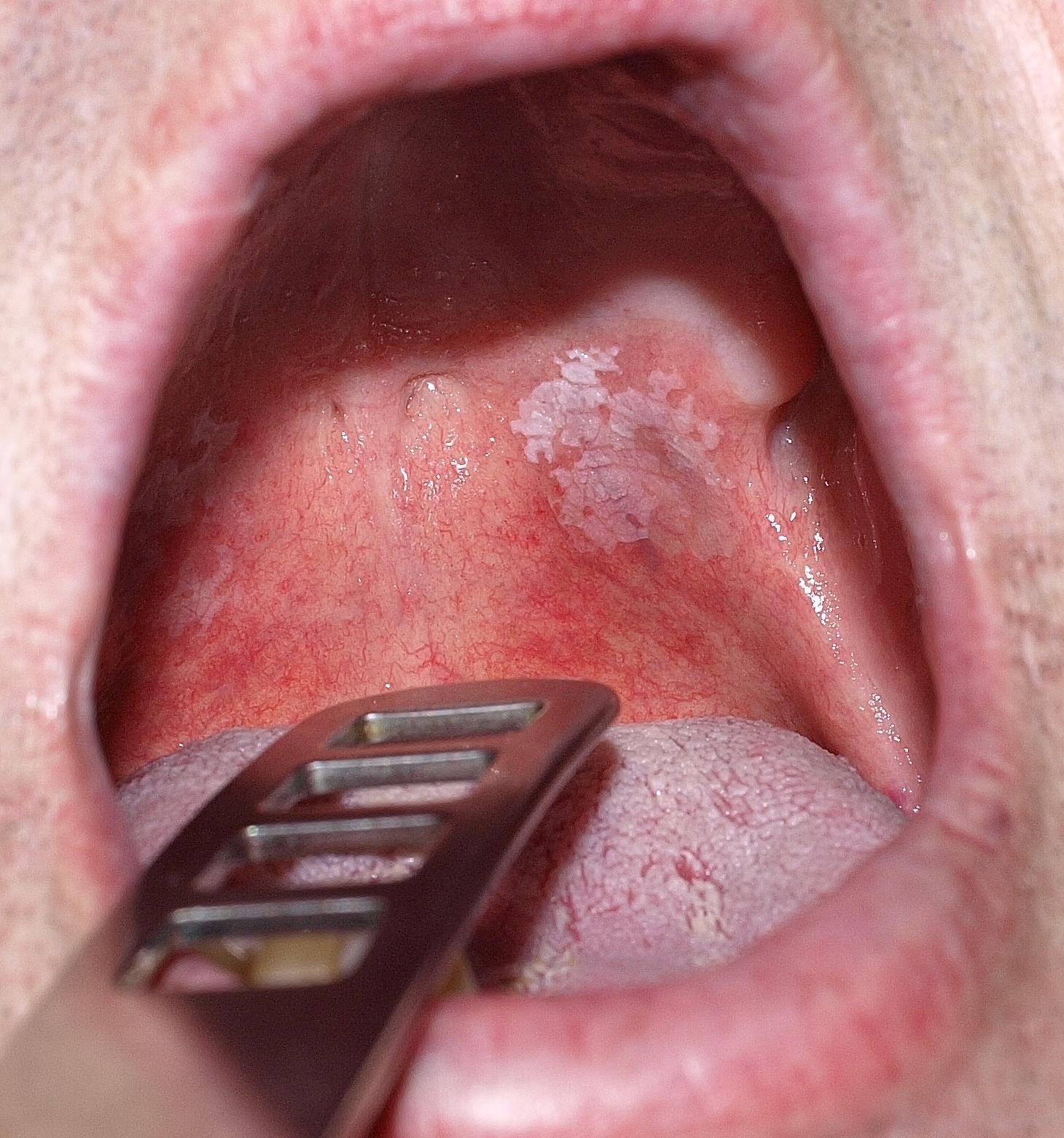 szemölcsök a nyelv nyálkahártyáján)