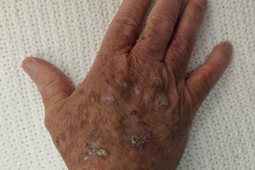 Bőrrák | Napfényes Gyógyközpont