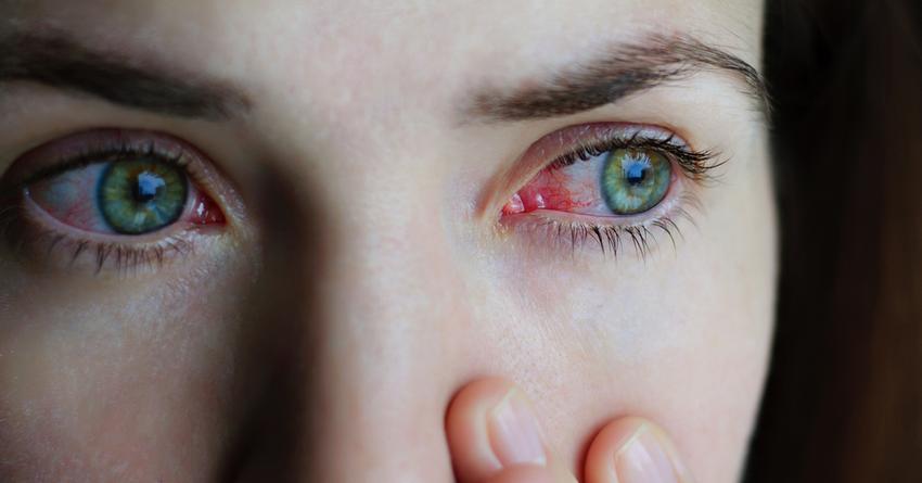 hogyan cauterizálhatjuk a szem papillómáját