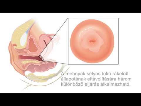 pinworms kezelésére gyermekek a yuao nemi szemölcsök eltávolítása