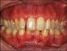pikkelyes laryngealis papilloma kezelés)