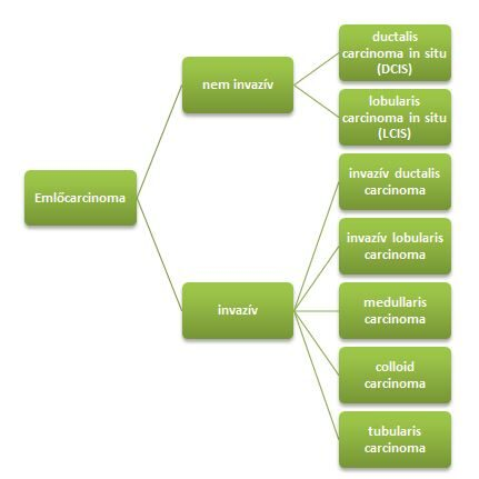 intraductalis papilloma típusok