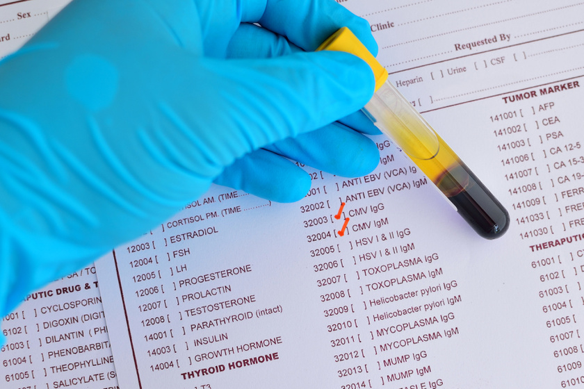 Humán papillomavírus – Wikipédia, Humán papilloma vírusok társulnak