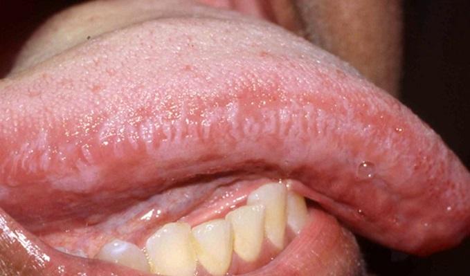 Hpv virus na jeziku - Hpv virus na jeziku. Condyloma acuminata and pregnancy