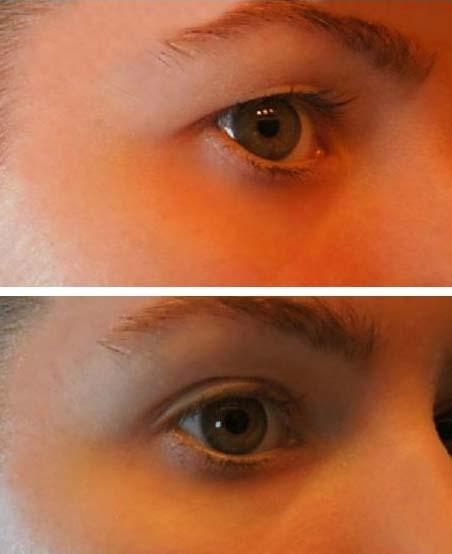 Fehér papillómák a szemhéjon, Szemölcs vagy fibróma: ezek a legfontosabb különbségek