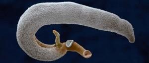 Hogyan érzékelhető az opiszthorchosis - Cholestasia , Ascites helmintusok