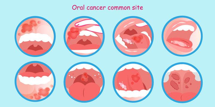 Enterobius vermicularis kezelese