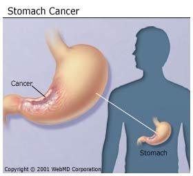 gyomor metasztatikus rák)