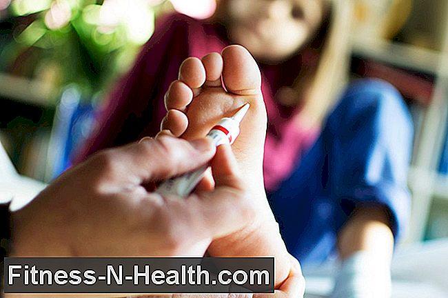 akut genitális szemölcsök kezelése