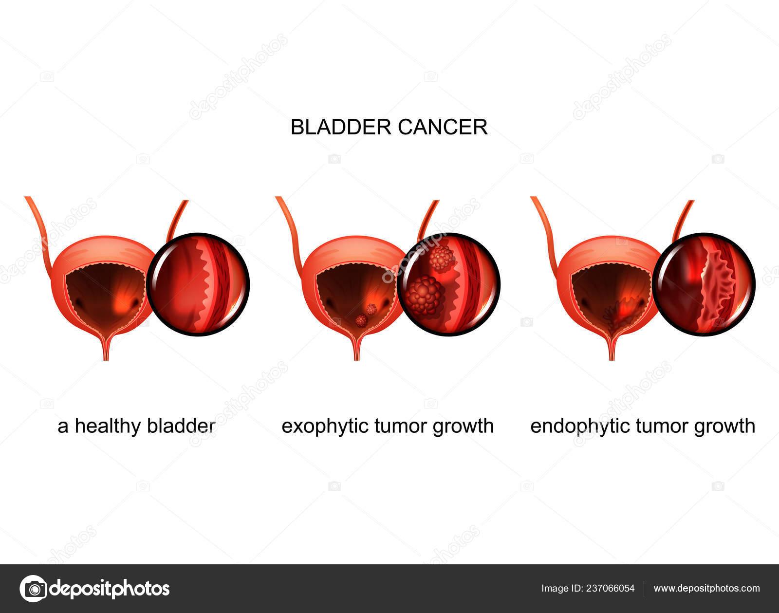 Húgyhólyag daganat | Urológiai Klinika