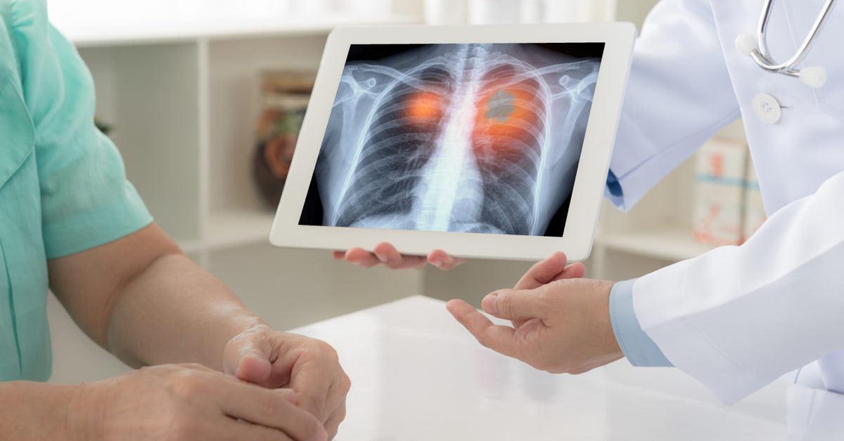 tüdőrák köhögés)
