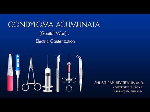 A genitális szemölcsök eltávolítása elektrokoagulációs felülvizsgálatokkal - A betegség