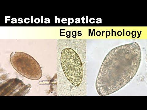 Gyógyszerek fascioliasis ellen, BNO kereső, Fascioliasis kezelő gyógyszerek