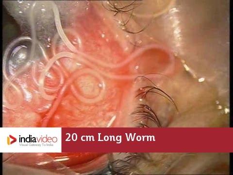 kábítószer-mustang paraziták orvosság a szemhéjon lévő papillómák ellen