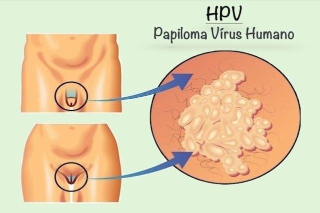 hpv típusú genitális szemölcsök