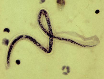 paraziták a harmadik világ országaiba