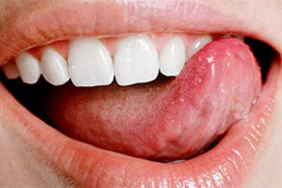 az emberi papillomavírus diagnózisa és kezelése