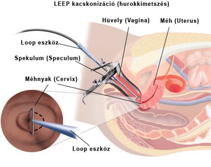 Veszélyes eltávolítani a papillómákat a torokból. HPV-fertőzés tünetei és kezelése