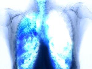 Fertőző vírusok a daganatok hátterében | Rákgyógyítás