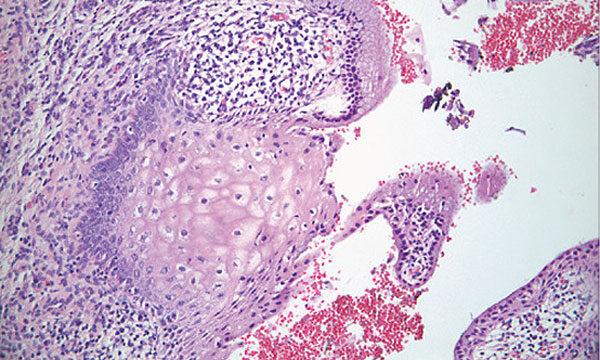 pikkelyes papilloma metaplasia