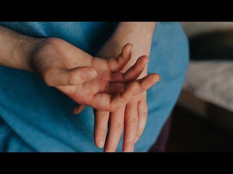 pinworms kezelésére gyermekek
