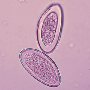 enterobius vermicularis a vizeletben)