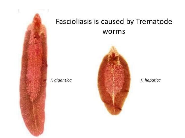 a fascioliasis földrajzi eloszlása