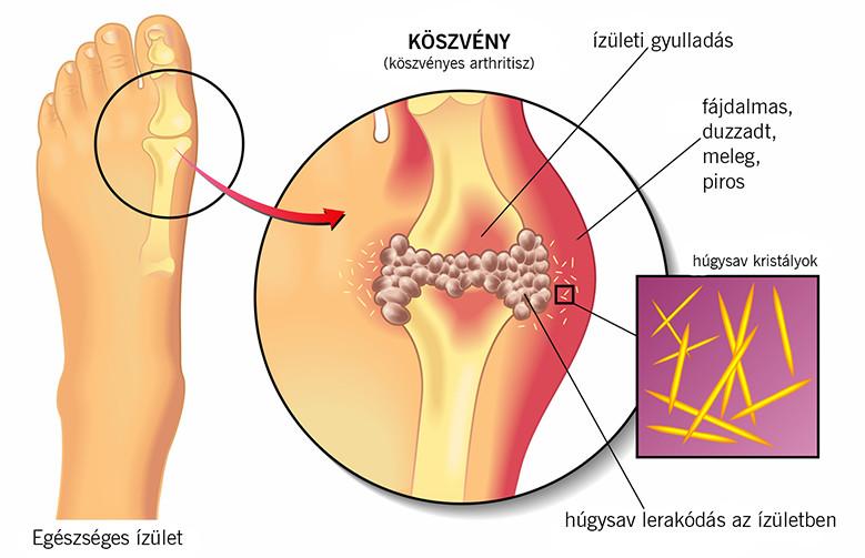 férgek kezelésében helminthiasis