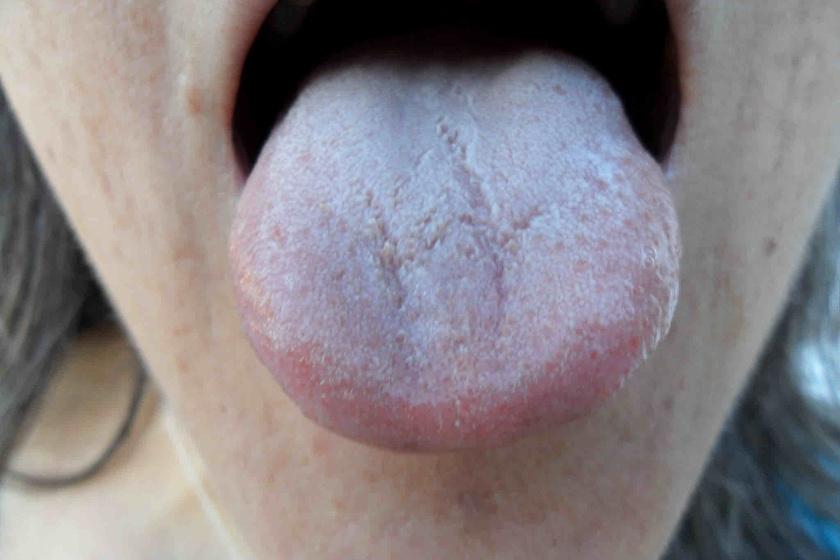 a nyelv papilláinak gyulladása)
