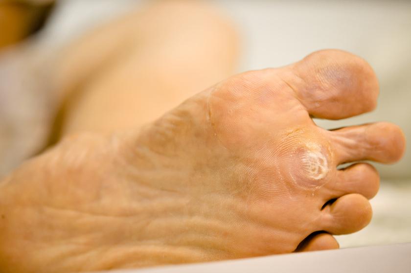 Így néz ki a fökény: az uszodában is elkaphatod a durva vírust - Egészség | Femina
