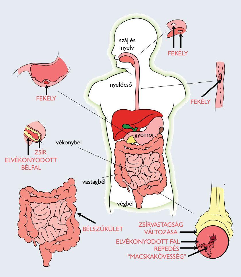A kerekes féreg károsodása - A test reakciója a féregre