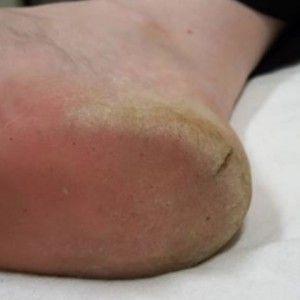 crack toe treatment reviews között)
