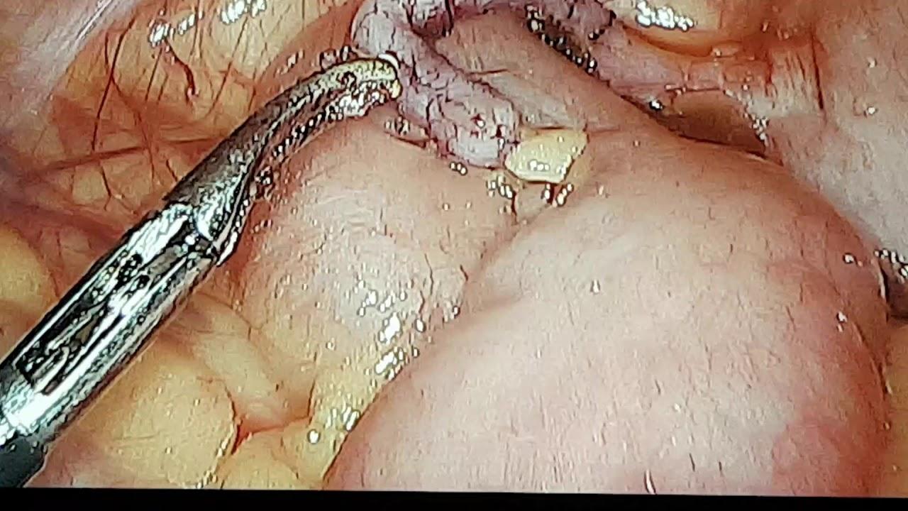 enterobius vermicularis fajta